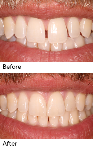 Cosmetic Dentistry For Diastema