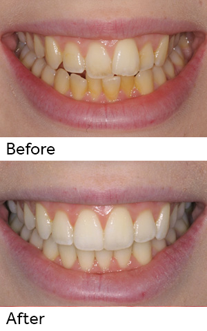 Patient Smile Makeover With Align and Bleach