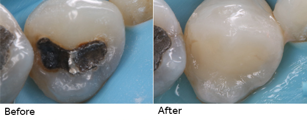 Replacing A Black Filling In Mouth