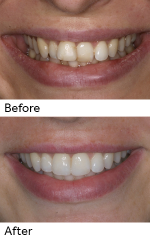 Dental Patient With Improved Appearance Of Teeth